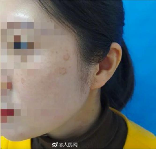 杭州一名27歲女子自高中畢業後,就沒有在凌晨2點前睡過覺。近日臉上長出老人斑,經...