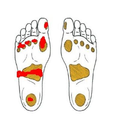 糖友要經常檢查腳底7個受壓點(紅色標示點),有沒有傷口,避免產生病變。圖/陳...