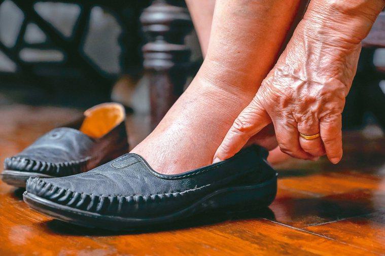 糖友別忽視挑鞋重要性,穿錯鞋恐引發足部病變。圖/123RF