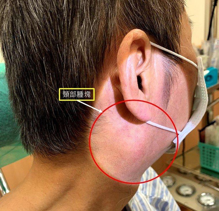 王男因疫情升溫,遲遲不敢就醫,直到吞嚥疼痛到受不了就醫,發現頸部右側腫塊為扁桃腺...