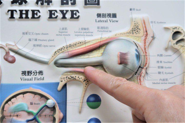 南投基督教醫院眼科醫師周介仁說明急性視神經炎原因。圖/南基醫院提供