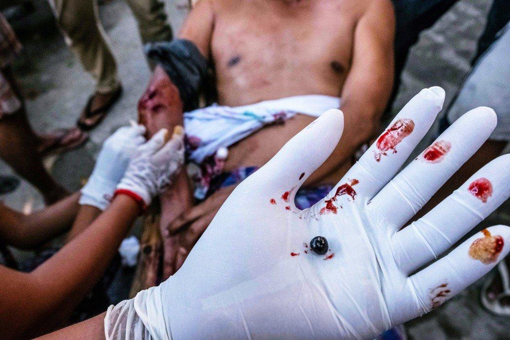 3月9日的仰光,一名志願醫護人員,從中槍示威者身上,挖出了軍警開火的彈頭。 圖/...