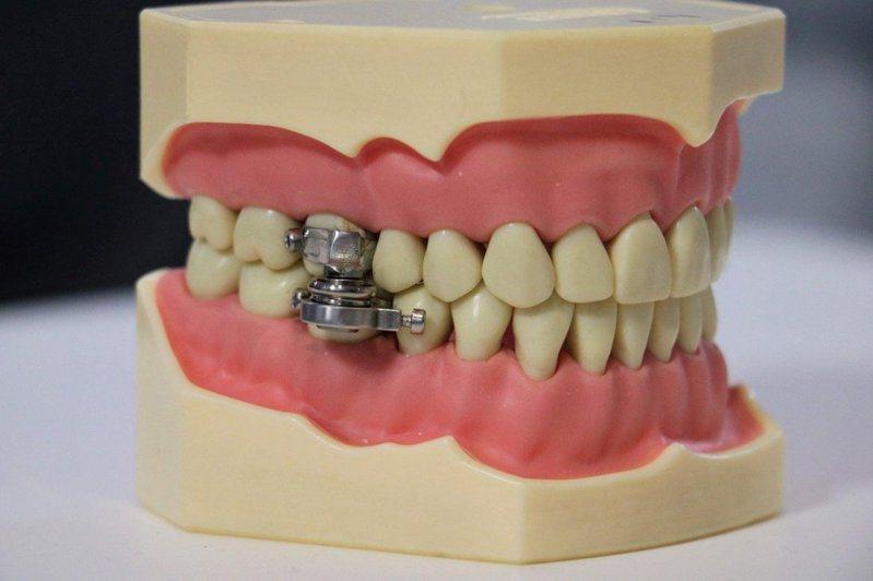 紐西蘭研究人員研發出一種全新的「減肥裝置」,它使用磁鐵將人的下巴「夾在一起」、希望藉此限制飲食,不過這也引來批評,有人將其比作中世紀的酷刑刑具。法新社