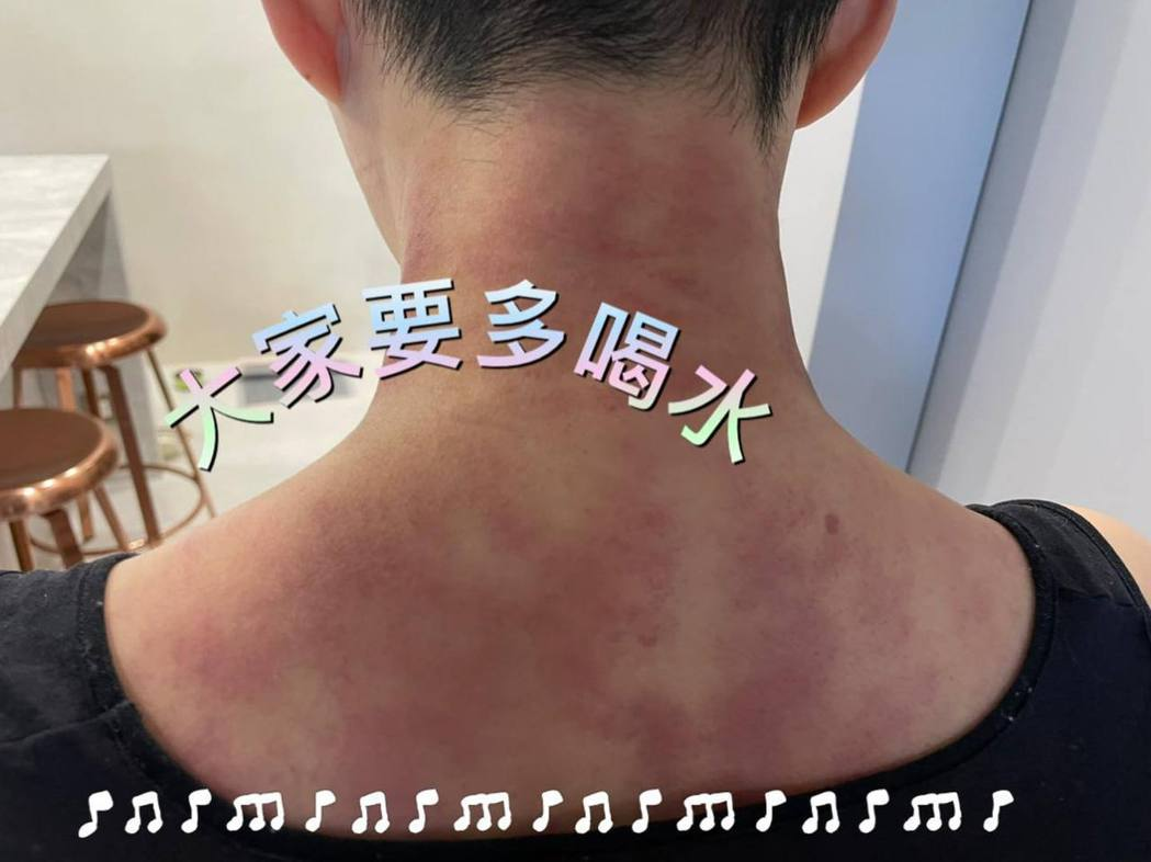 詹雅雯PO刮痧後的照片。 圖/擷自詹雅雯臉書