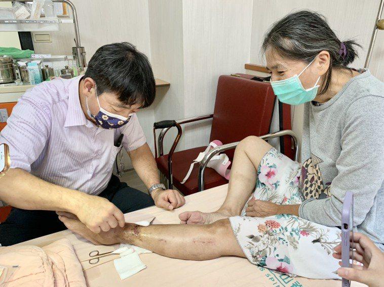 平日在澎湖開業執醫的李松青(左),為救高雄資收婦人的傷腿 ,固定申請來高雄替她治...