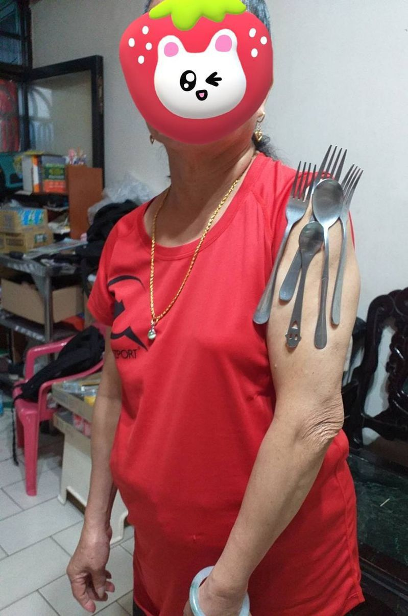 新北市汐止區柯媽媽出現「疫苗手臂」,手臂注射處,一口氣吸附2支湯匙、3支叉子。圖/柯小姐提供