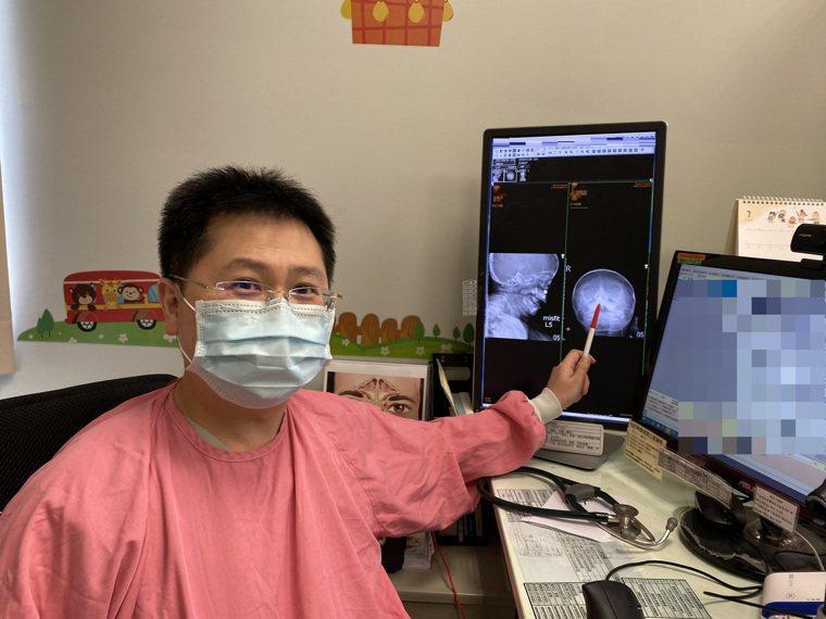 長安醫院小兒科主任陳震南指出,鈕扣電池是危害最大的鼻腔異物,因為它會釋放鹼性液體...