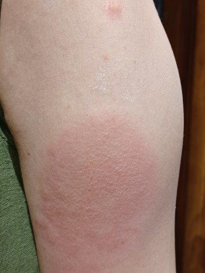 我打莫德納疫苗,沒想到第八天開始出現了所謂的「新冠手臂」。圖╱熊美惠提供