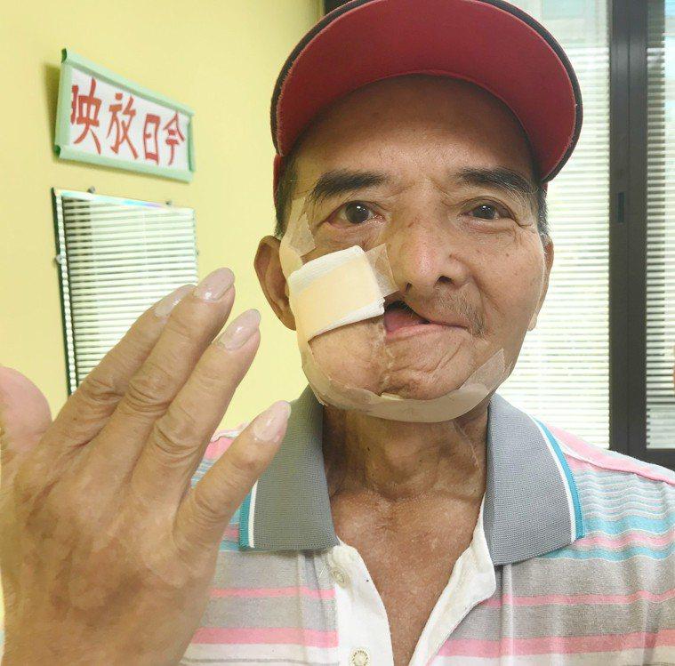 鄭大哥在6年前罹患口腔癌,至今已歷經9次重建手術,陽光基金會陪伴鄭大哥面對病痛,...