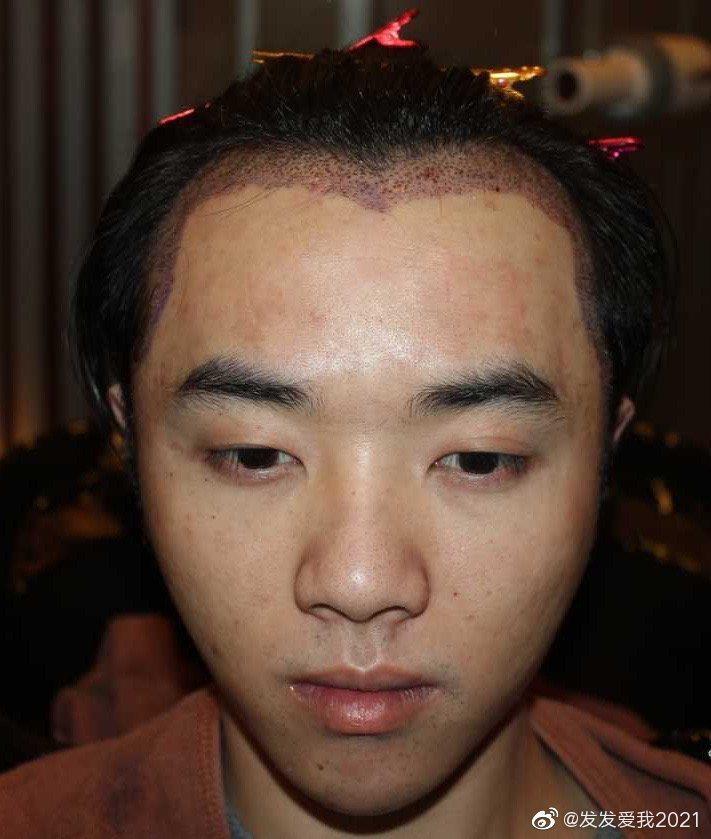 稱是華晨宇女友的網友流出多張稱華晨宇植髮、治療皮膚的照片。圖/摘自微博