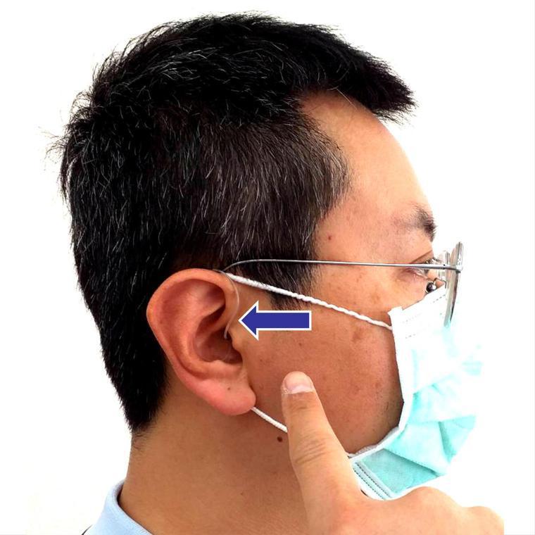 醫師示範配戴助聽器,現今助聽器 (箭號所指) 大多隱形,不易察覺,以免影響配戴者...