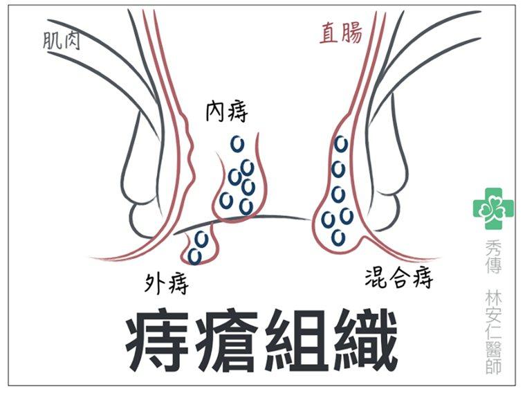 內痔、外痔、混合痔的不同在於生長的部位。 圖/林安仁醫師 提供