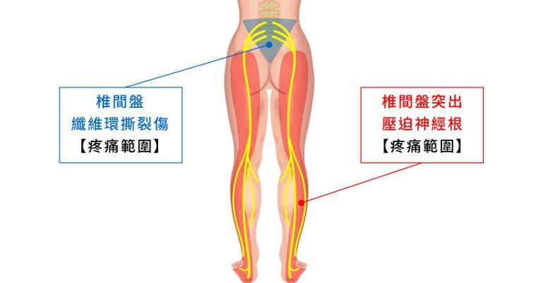 藍色區塊為椎間盤纖維環撕裂傷之疼痛範圍,紅色區塊為椎間盤突出壓迫神經根之疼痛範圍...