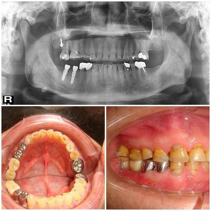 歐凱捷植牙案例,父親節要到,送給爸爸一口健康好牙,比吃大餐還重要。  歐凱捷醫師...
