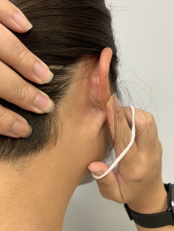 防疫長時間戴口罩,對於皮膚較敏感的人,耳朵皮膚可能因口罩耳帶摩擦,引起過敏反應。...
