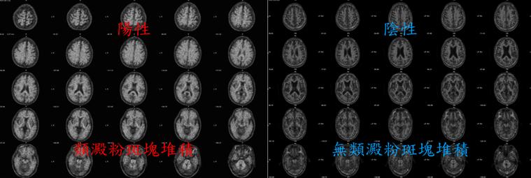 若造影結果是陽性,表示腦中類澱粉斑塊堆積,這些斑塊通常會出現在阿茲海默症患者的大...
