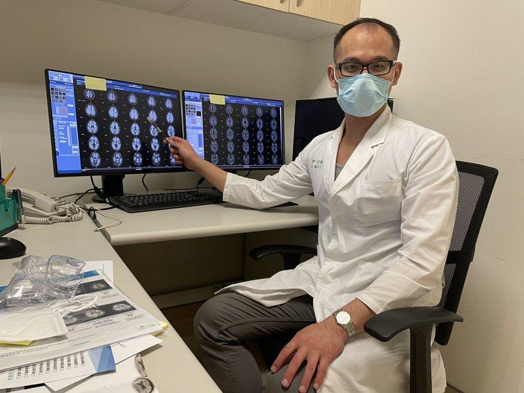 中醫大學新竹附醫核醫科主任張宇捷表示,β-類澱粉蛋白斑塊是阿茲海默症最早能夠經由...