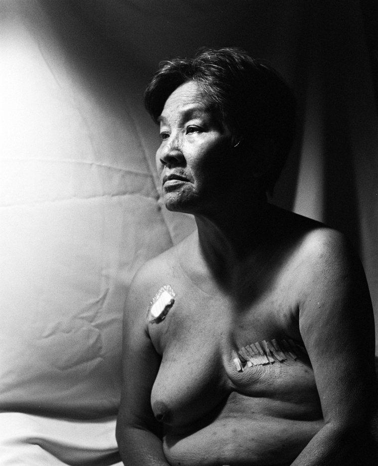 「生命癌殤」一作是攝影師王怡霖的母親,接受癌症手術後兩周所拍攝。圖/王怡霖提供