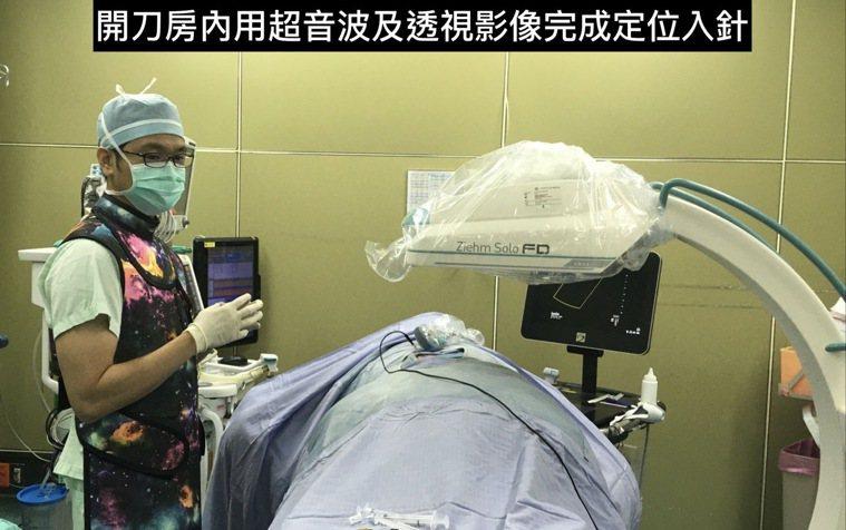 奇美醫學中心疼痛科主治醫師廖書緯今發表難治帶狀皰疹複合療法。圖/廖書緯提供
