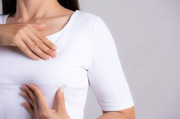 乳癌是台灣婦女發生率第一的癌症。示意圖。本報資料照片