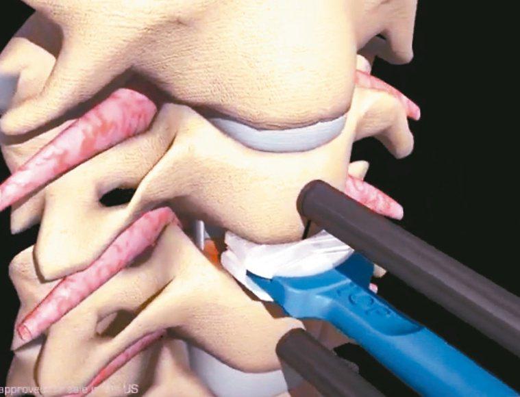 可活動式人工椎間盤,有助保有頸椎活動能力。圖/湯其暾提供