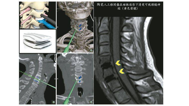 置換陶瓷人工椎間盤後,患者接受磁振造影檢查,頸髓神經(黃色箭頭處)清楚可見。圖/...