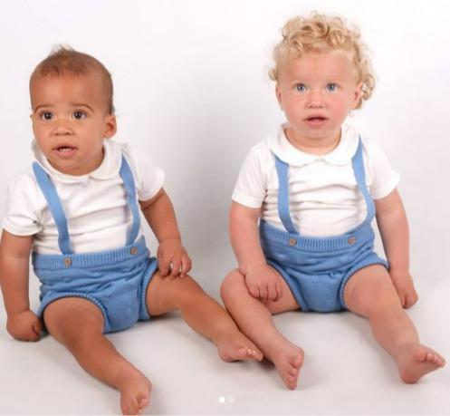 一對混血夫婦生下膚色截然不同的雙胞胎。圖/取自dailymail