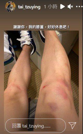 球后戴資穎凌晨IG限時動態裡貼出自己滿是傷痕的雙腿部照片,附上一句「謝謝你,我的