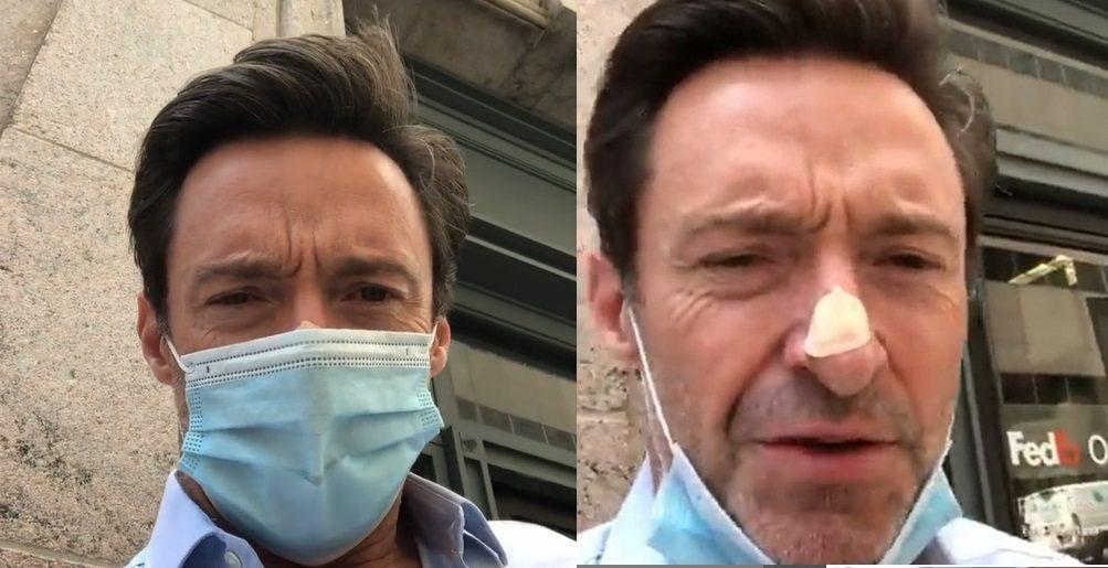 休傑克曼拍短片提醒觀眾,防曬非常重要,也露出鼻子上的貼片,表示要赴醫院檢查。圖/