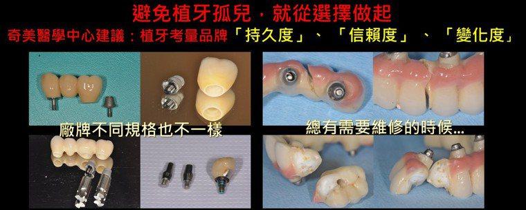 奇美醫學中心表示,植牙考量品牌持久度、信賴度、變化度。圖/奇美醫學中心提供