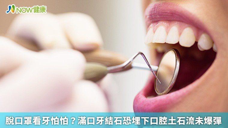 ▲全國疫情警戒很多人怕脫口罩而不敢看牙,部立雙和醫院牙科部主任黃茂栓提醒,牙結石...
