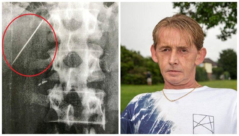 英國男子普萊斯頓(右)的肝臟卡著一根縫衣針(左,紅圈)已經長達至少15年了,但連他自己都不知道這到底是怎麼一回事。畫面翻攝:The Sun