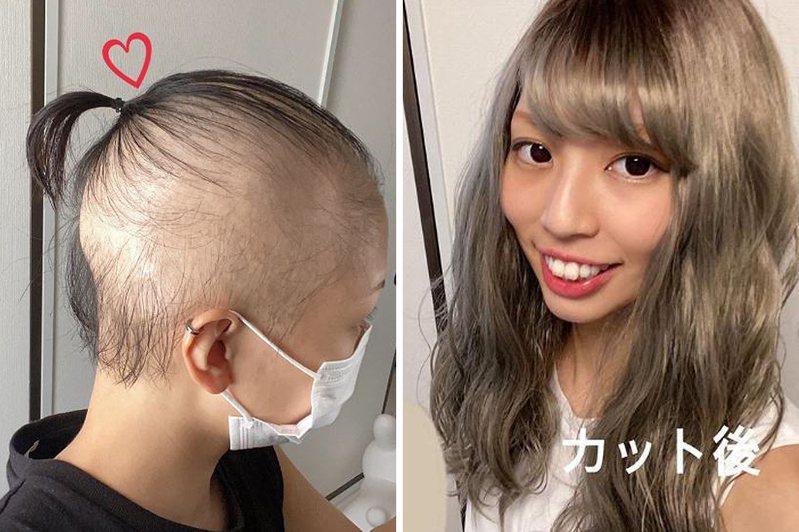 日本一名年輕女子自曝接種莫德納疫苗後卻瘋狂掉髮,自接種後隔一個月幾近全禿。 圖/翻攝自Ameba、IG