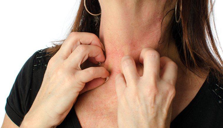 濕疹是各種發炎性皮膚疾病統稱。圖/123RF