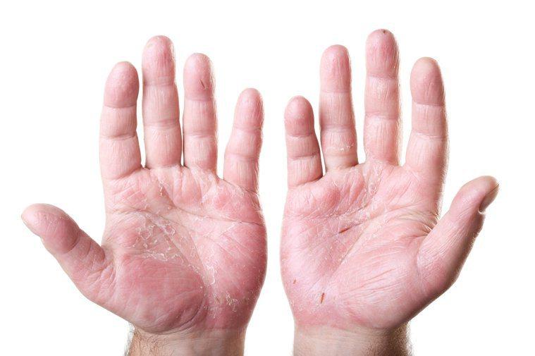 濕疹有些慢性濕疹症狀是脫皮、增厚,且該部位乾燥。圖/123RF