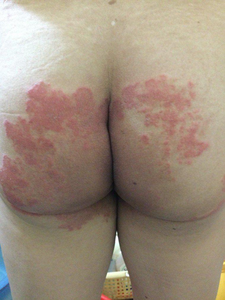 股癬透過手部搔抓感染或由衣物感染黴菌導致股癬發生。圖/皮膚科醫師蔡逸姍