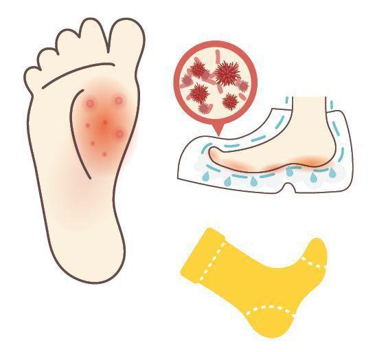 足癬就是俗稱的「香港腳」,潮濕的環境特別容易感染,感染後可能出現多樣形態。圖/1...
