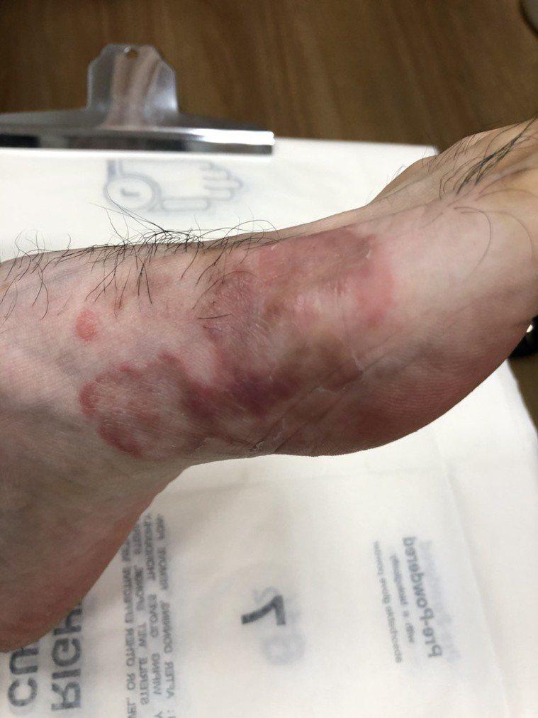 足癬腳底長期潮濕悶熱好發足癬。圖/皮膚科醫師蔡逸姍提供