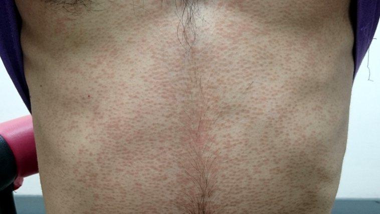 汗斑皮膚感染皮屑芽孢菌引起,好發在前胸、後背。圖/台北市黃禎憲皮膚科診所...