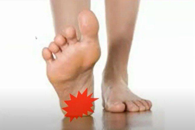 足底筋膜炎是走路時腳底會痛。 圖╱WaCare課程影片提供