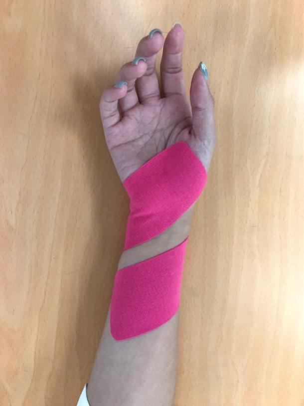 (圖7.手腕尺側肌貼貼紮。動作示範/丁雅婷物理治療師 圖片來源/蔡育霖醫師提供)...