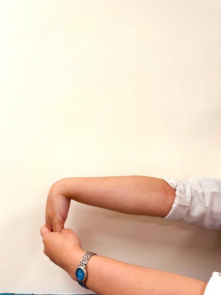 (圖8.手腕伸肌伸展運動。動作示範/丁雅婷物理治療師 圖片來源/蔡育霖醫師提供)...