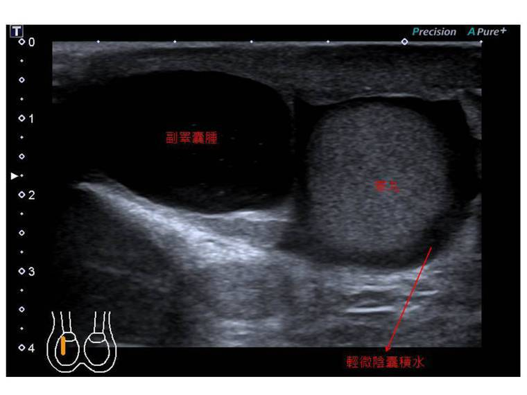 一名50多歲男子在家騎飛輪,卻因陰囊腫大不斷摩擦,痛到不行前往就醫。圖/書田診所...
