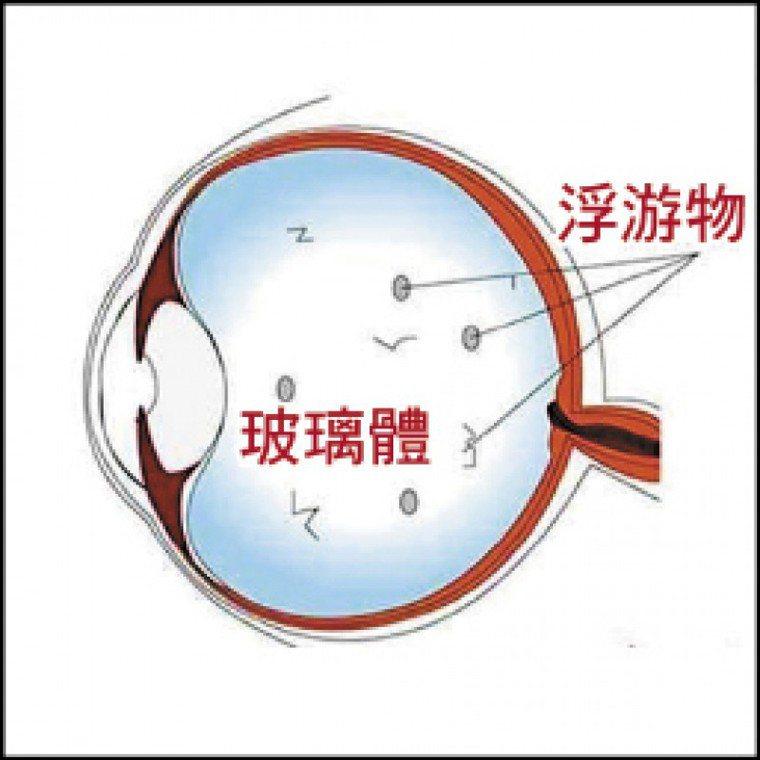 施打AZ疫苗後幾天,玻尿酸中的水分會釋放到充滿膠質的玻璃體,使視網膜產生陰影,大...