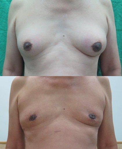 一名65歲的王先生(化名)罹患攝護腺癌,卻因服用抗癌藥物導致男性女乳症,讓他相當...