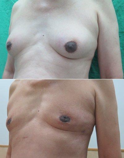 王先生(化名)因服用抗癌藥物,10年後竟長出D罩杯,讓他相當困擾,經過手術治療後...