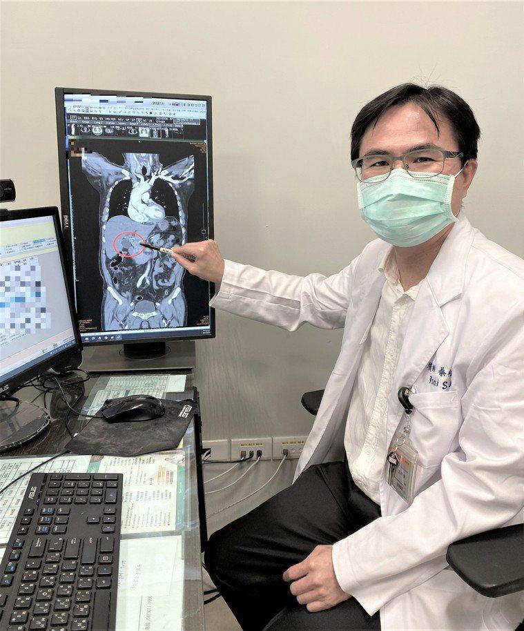 長安醫院肝膽腸胃科醫師蔡松茂指出,總膽管結石的症狀常見會有上腹痛、發燒及黃疸,像...