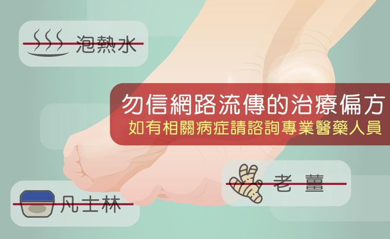 坊間有許多關於預防與治療香港腳的說法,有些是正確觀念,但也有很多是錯誤的治療偏方...