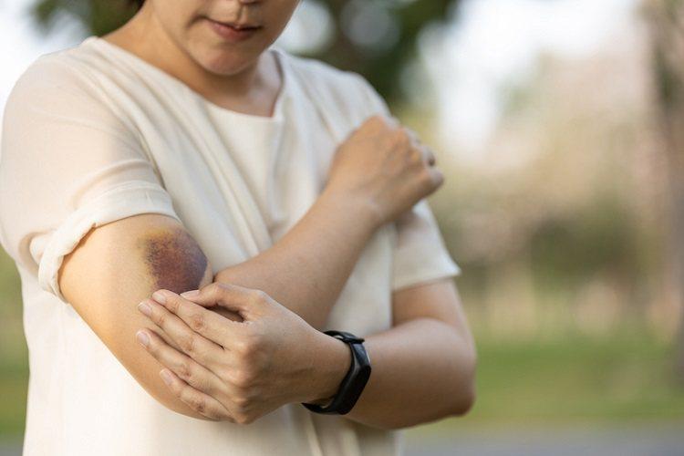 若注射在肩膀太低的位置是有可能傷到橈神經,而注射在肩膀太後外側的位置是有可能傷到...