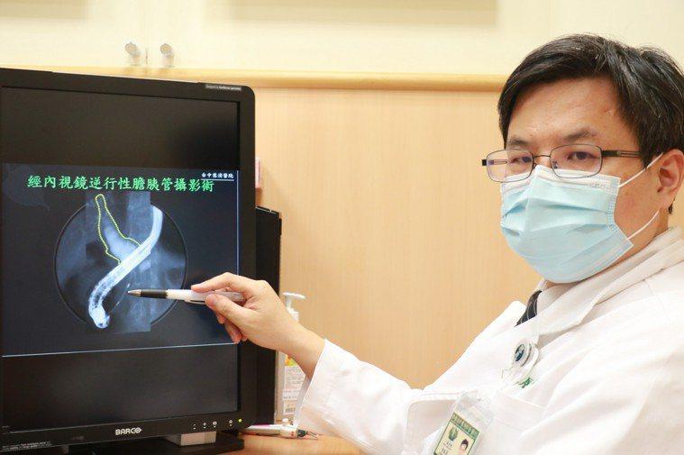 張姓老翁經「內視鏡逆行性膽胰管攝影術」檢查,從通道堵塞確認老翁罹患胰臟癌。圖/台...